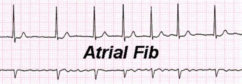 Sudden onset AFIB