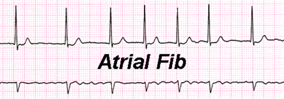 Sudden onset AFIB